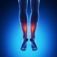 Painful Injuries to the Achilles Tendon
