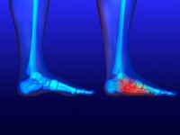 Are Flat Feet Painful?