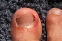 Common Symptoms of an Ingrown Toenail