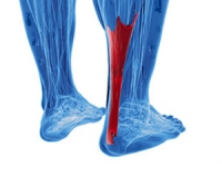 How Do Achilles Tendon Injuries Occur?